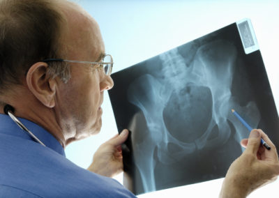 "An Alternative ""Approach"" to Hip Replacement Surgery"